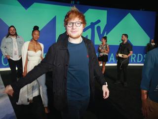 Ed Sheeran hurt himself cycling