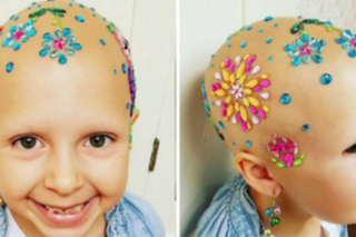 7-year-old with alopecia owned 'Crazy Hair Day'