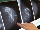 Study: Some with cancer may not need chemo